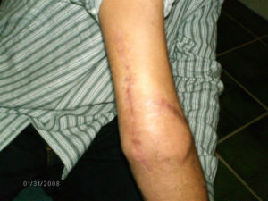 herida de williams parrales