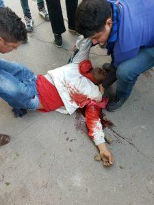 Ciudadano herido de bala en Guacamaya, Villanueva, Cortés